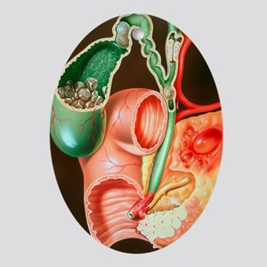 of the pancreas - Oval Ornament
