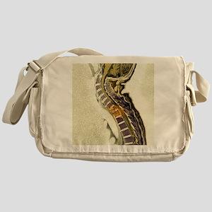 Secondary tumours - Messenger Bag
