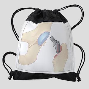 Hip replacement, artwork Drawstring Bag