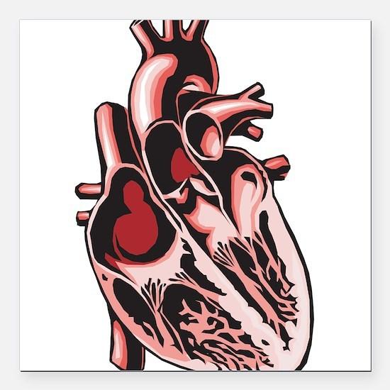 "half-human-heart.png Square Car Magnet 3"" x 3"""