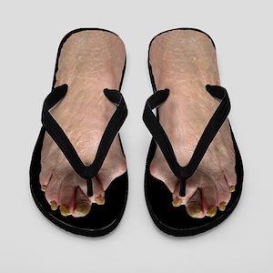 1c027292c0dac9 Ugly Flip Flops - CafePress