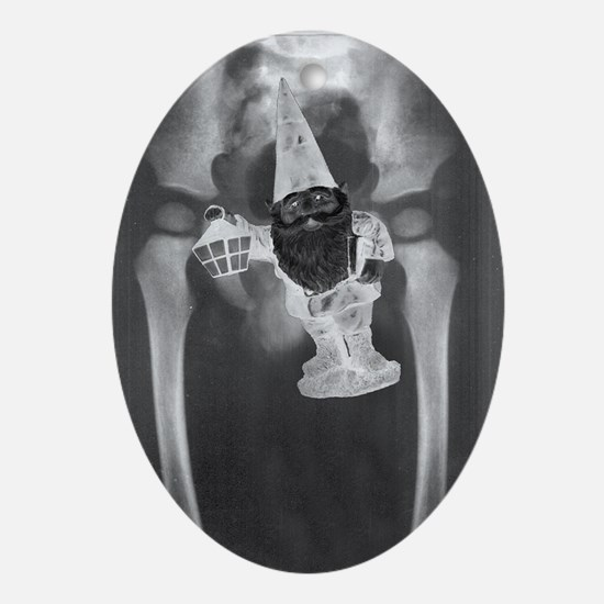 PELVIS X-RAY w/ GNOME - Oval Ornament