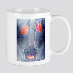 Urinary system, X-ray Stainless Steel Travel Mugs