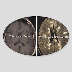 Brain on MS Sticker (Oval)